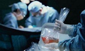 Донорство органов легитимировано: Закон о трансплантации превращает Украину в страну медицинского туризма